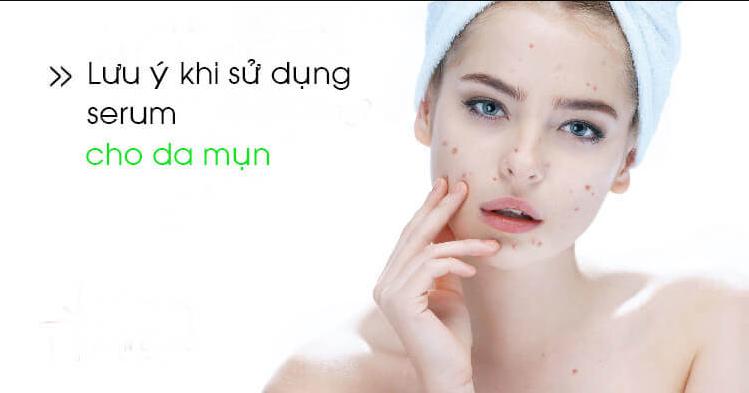 serum-trị-mụn
